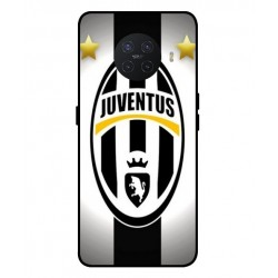 Durable Juventus Cover For Oppo Ace 2