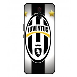 Durable Juventus Cover For ZTE Nubia Play